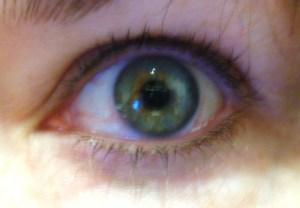 Sharons eye before