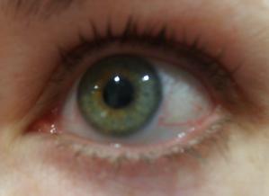 sharons eye week 1