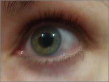 sharons eye week 2