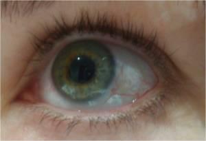 sharons eye week 3