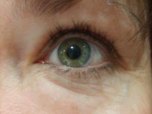 eye shot week 6