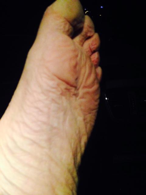 feet wrinkle